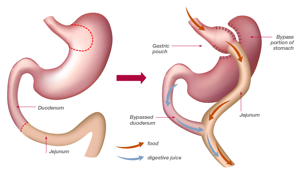 Bypass Gastrico Caceres